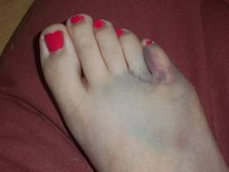 hurt pinky toe